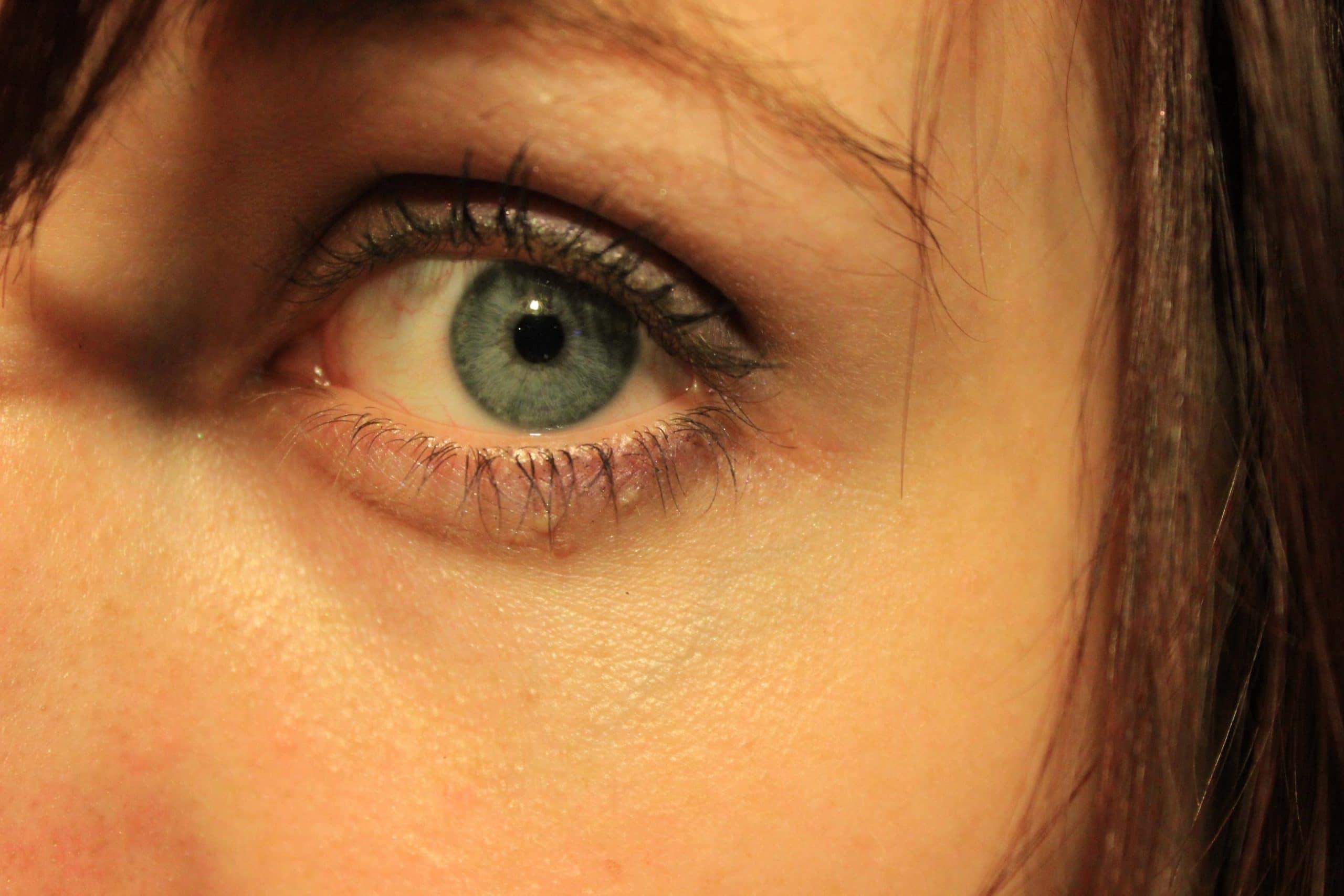 vista-optica-actur-diabetes